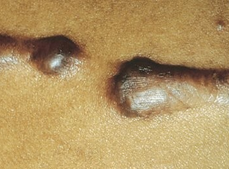 Remedies for Keloid Scars 2