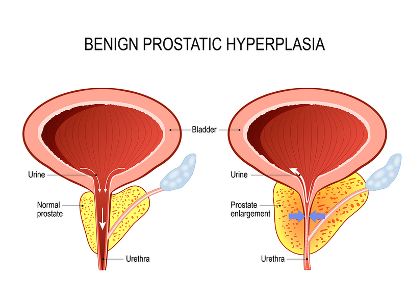 Remedies for Enlarged Prostates 5