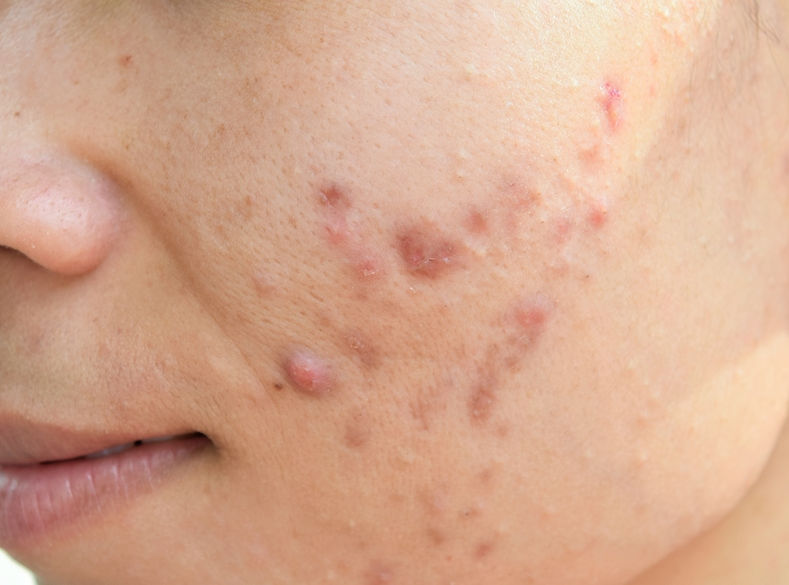Rare Remedies for Acne 2