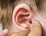 Troubled Ears and Homeopathy 1