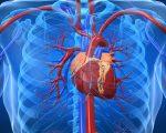 Heart Disease and Homeopathy 2
