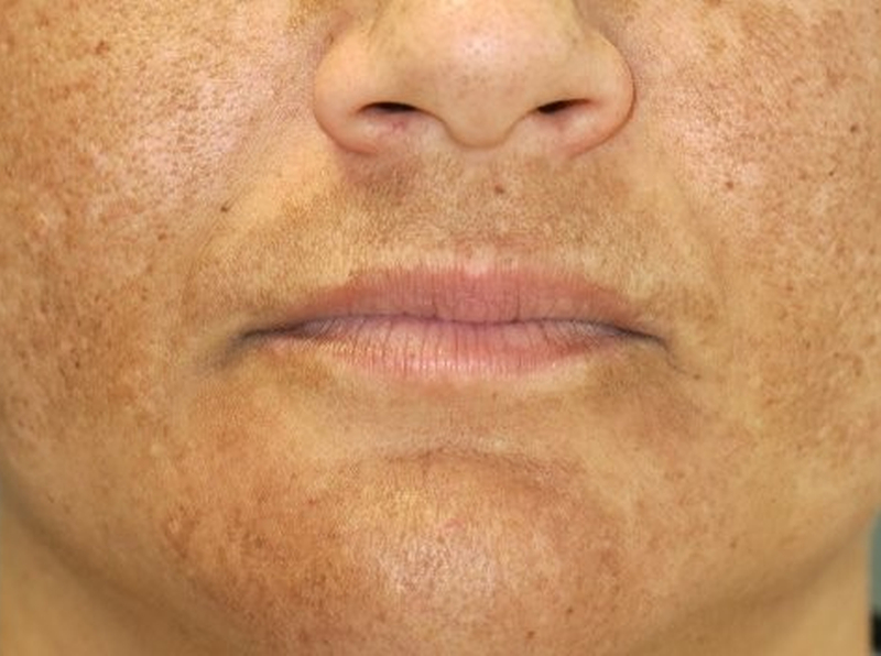 Homeopathy for Melasma 1