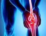Remedies for Osteoarthritis 7