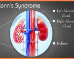 Remedies for Conn's Syndrome 1
