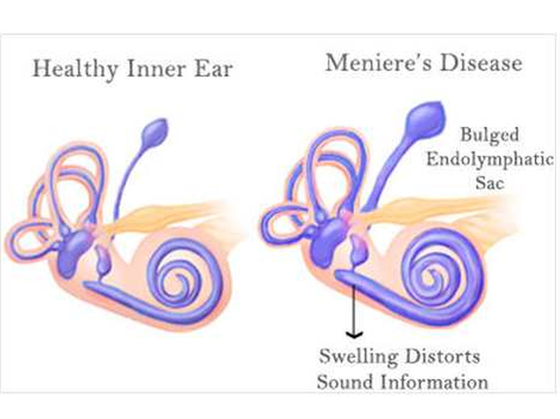 A Case of Meniere's Disease 5