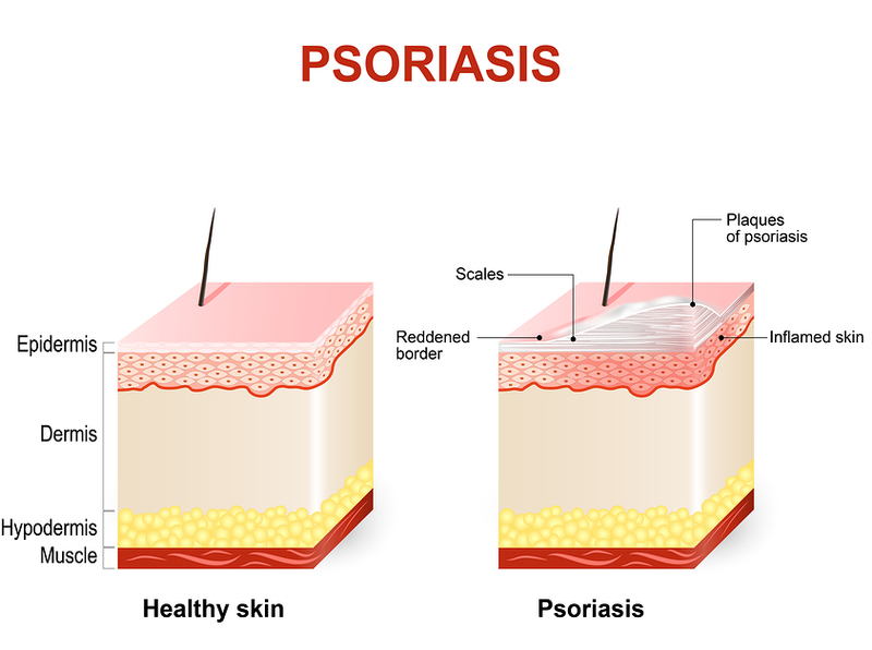 Homeopathy for Psoriasis 5