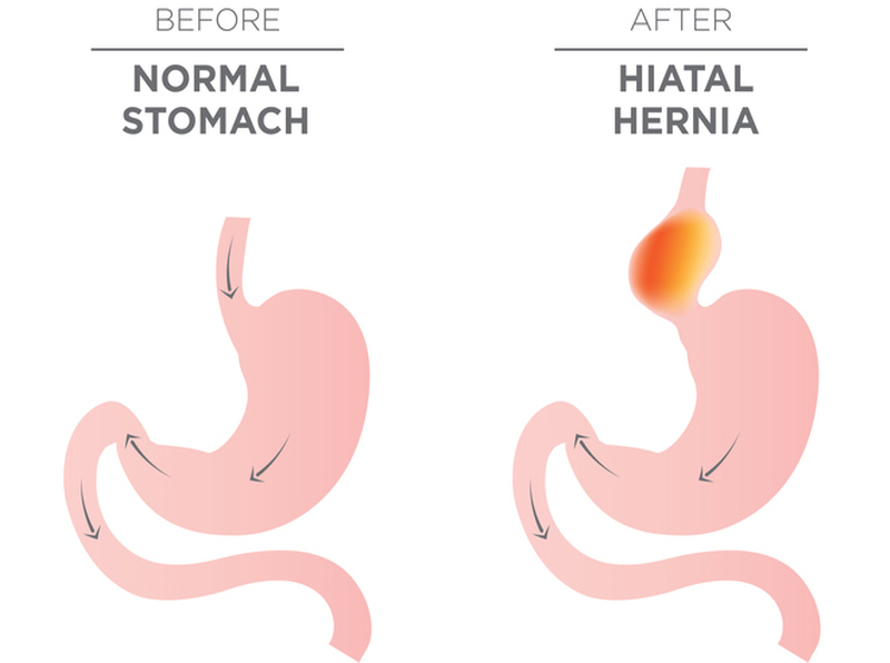 Homeopathy for Hernias 5