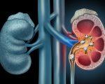 Dissolving Kidney Stones 2