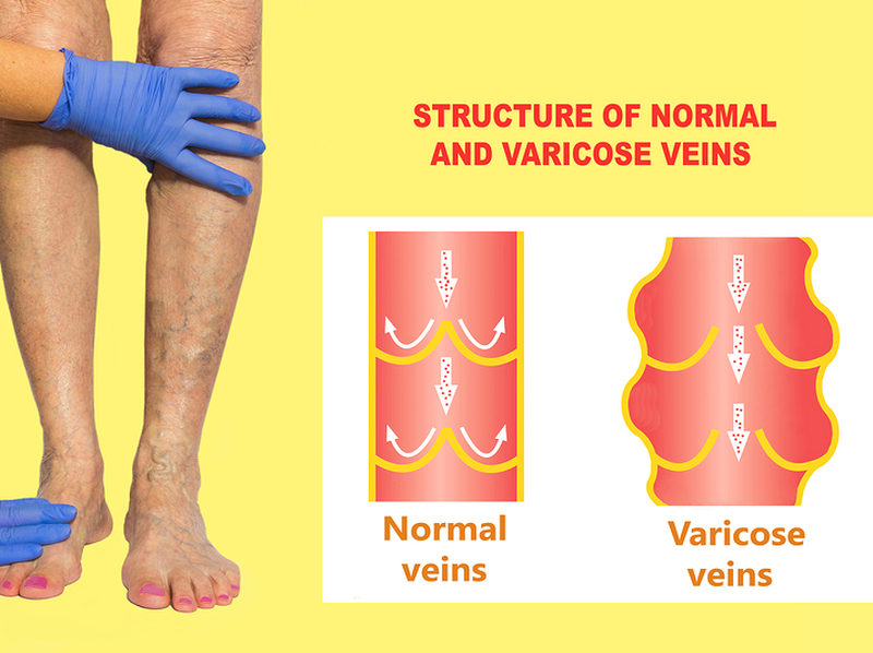 Remedies for Varicose Veins 3