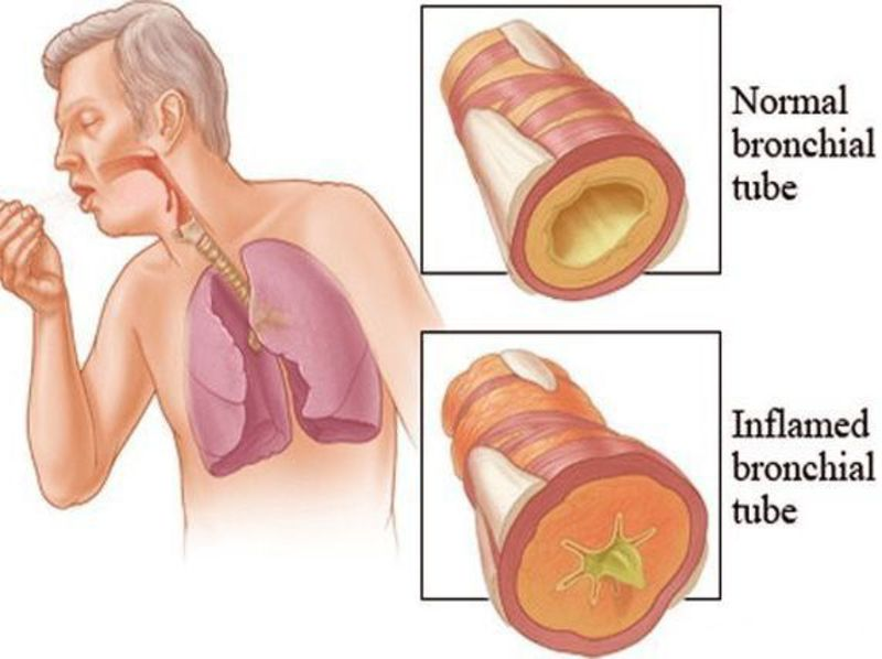 Homeopathy for Bronchitis 3