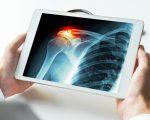 Homeopathy for Broken Bones 2