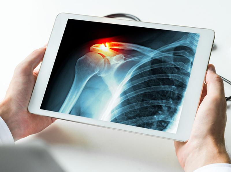 Homeopathy for Broken Bones 9