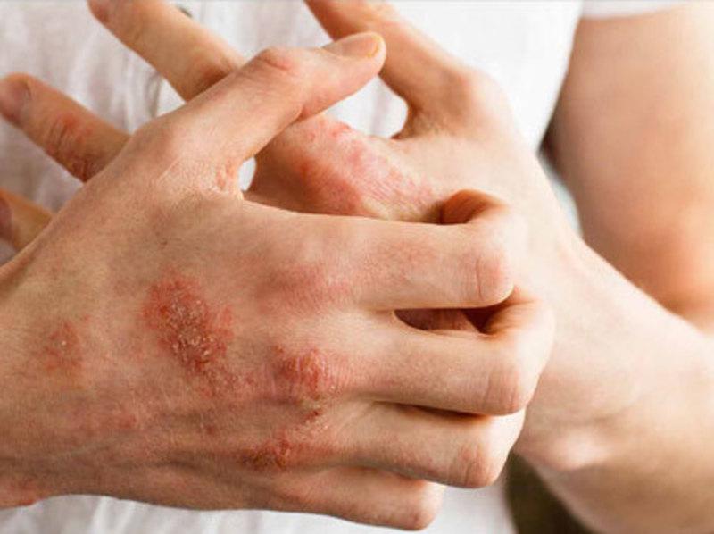 Homeopathy and Eczema 2