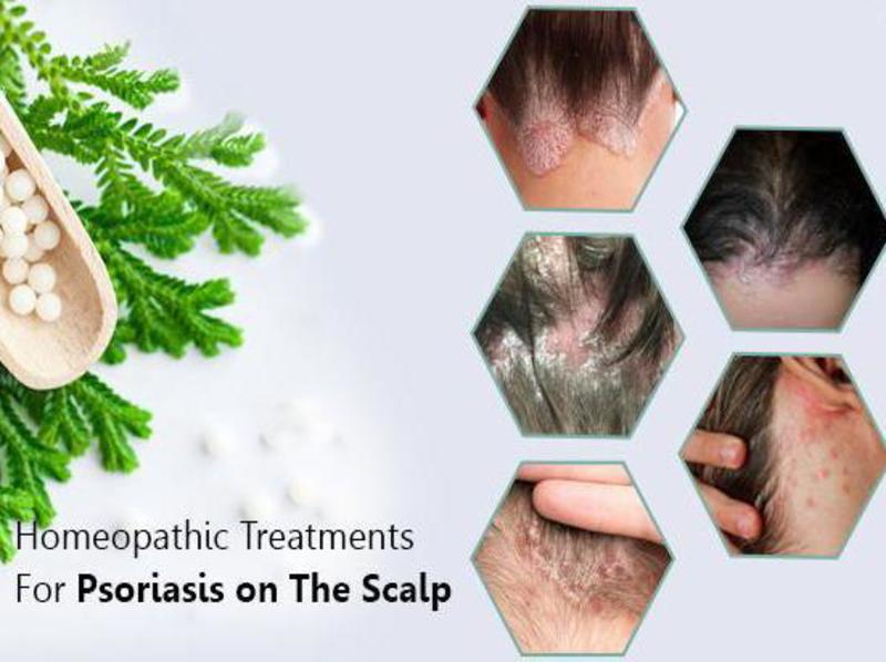 Remedies for Scalp Psoriasis 3