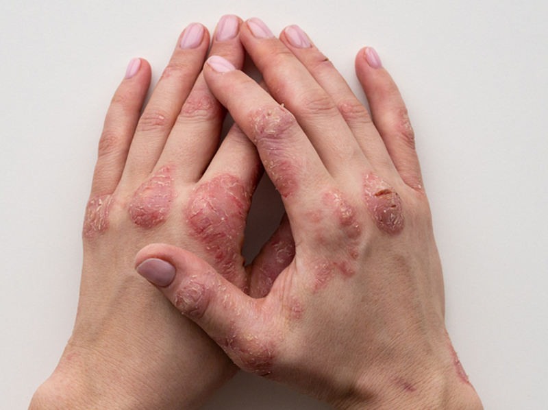Skin Conditions and Homeopathy 2