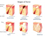 Remedies for Acne and Scars 6