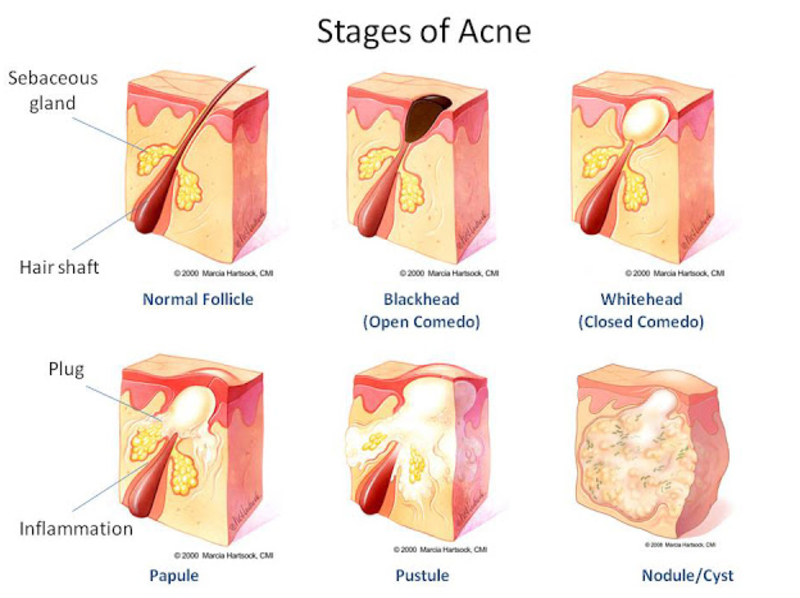 Remedies for Acne and Scars 1