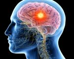 Homeopathy for Brain Disease 7
