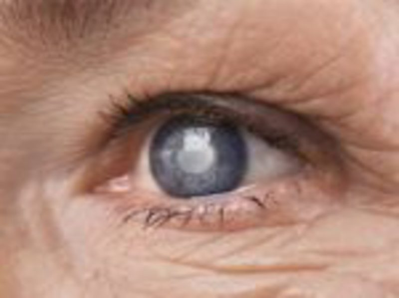 Effective Remedies for Cataracts 7