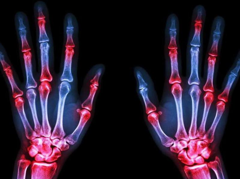Remedies for Finger Joint Pain 3