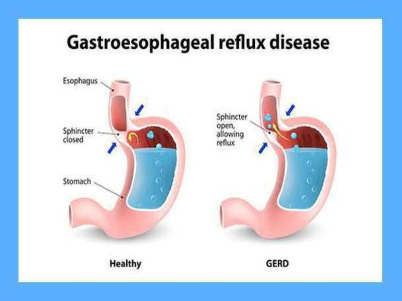 Case Report: Reflux in a Child 3