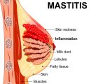 Homeopathy for Mastitis 9