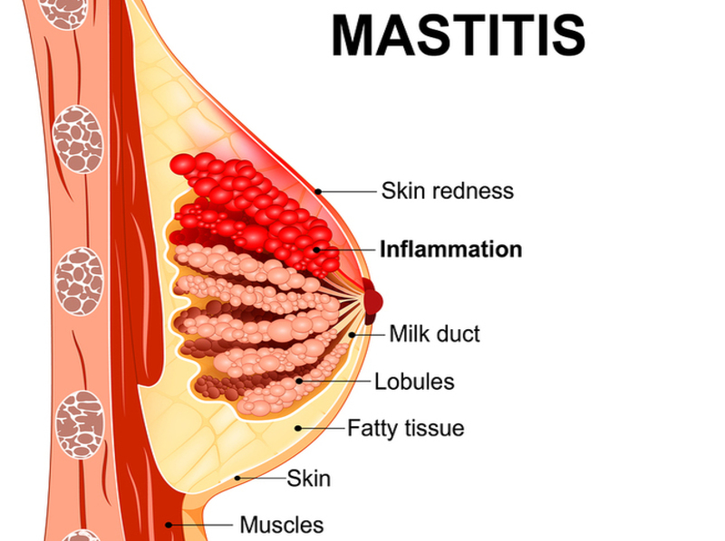 Homeopathy for Mastitis 3
