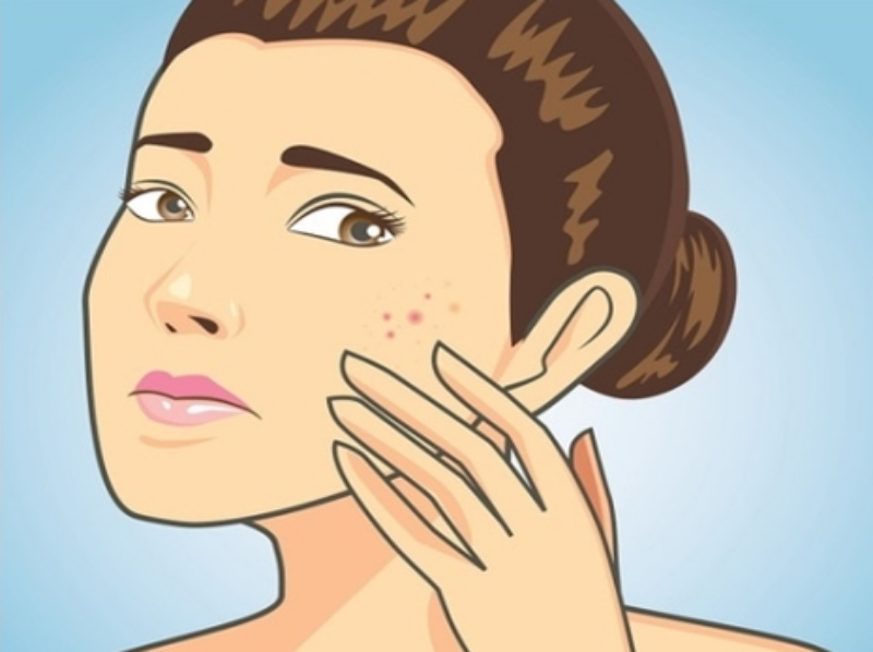 Acne and Homeopathy 8