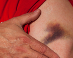 Healing Bruises With Homeopathy 3