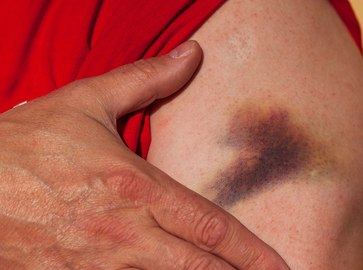 Healing Bruises With Homeopathy 5