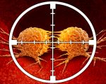 Placebo Effect on Cancer? 3