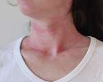 Remedies for Urticaria 3