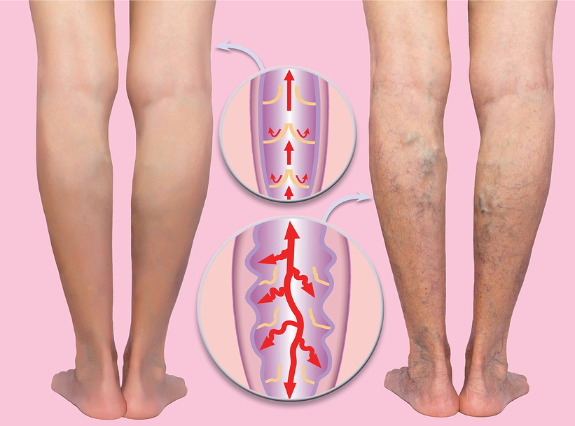 Remedies for Varicose Veins 1
