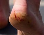 Remedies for Heel Cracks 1