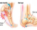 Remedies for Heel Pain 1