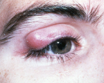 Homeopathy for Chalazion 5