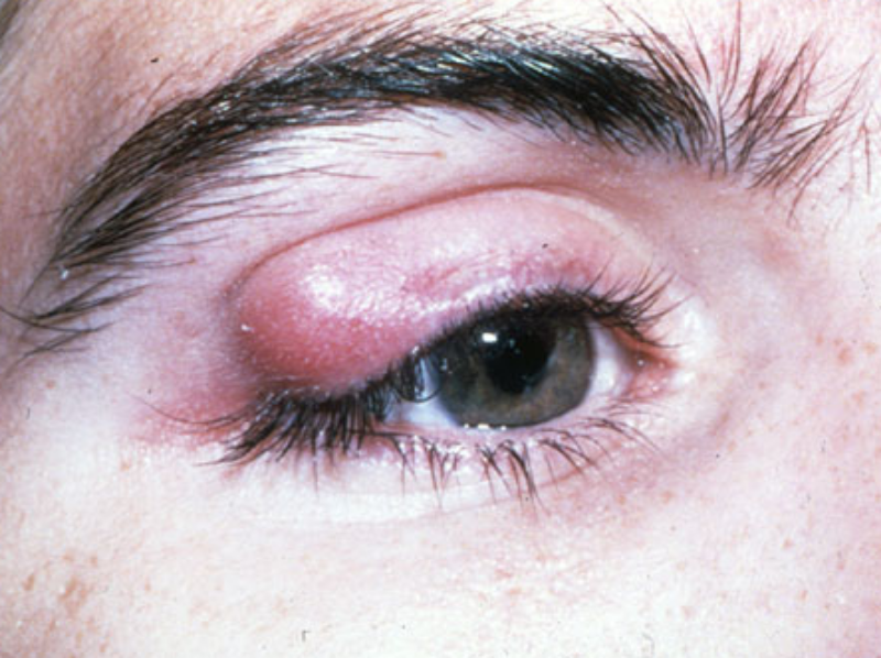 Homeopathy for Chalazion 1