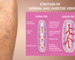 Deep Vein Thrombosis (DVT) 2
