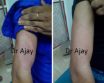 Remedies for Ringworm and Fungal Infections 2