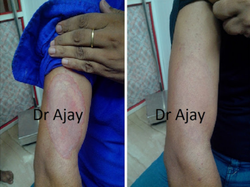 Remedies for Ringworm and Fungal Infections 1