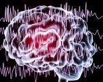 Epilepsy and Its Management 3