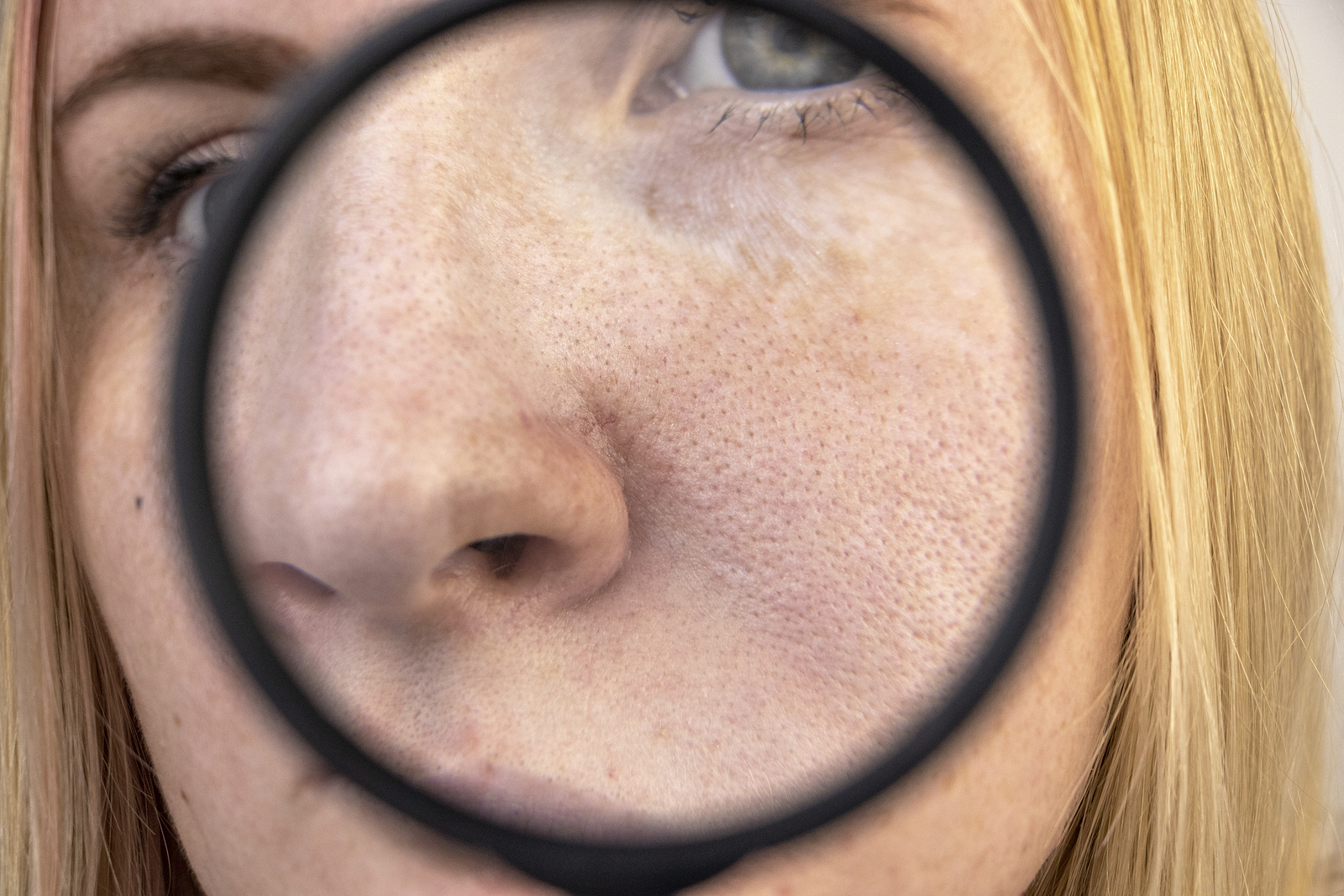 Remedy for Acne Rosacea 1