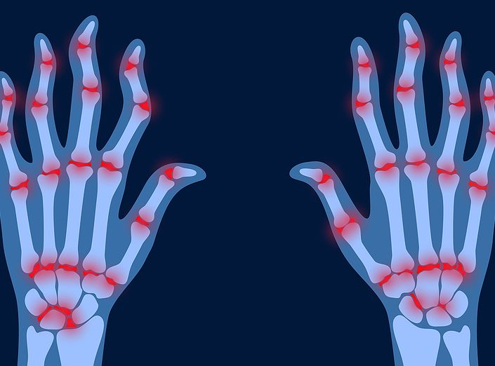 Rheumatoid Arthritis - Lauren's Story - Homeopathy Helps Me to Live a Normal Life 1
